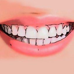 Dentífricos blanqueadores