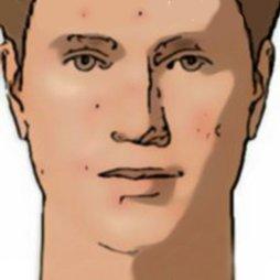 Pieles acneicas