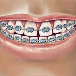 Colutorios ortodoncia